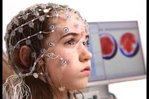 Baram Epilepsy Image